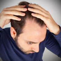 Can SMP Provide Guaranteed Results For Hair Loss?